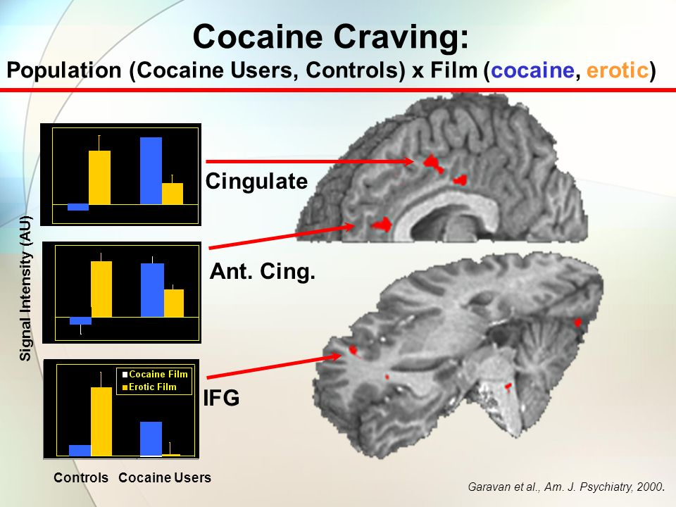 Cocaine Craving: Population (Cocaine Users, Controls) x Film (cocaine, erotic) Cingulate. Ant. Cing.