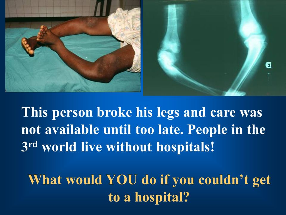 What would YOU do if you couldn't get to a hospital