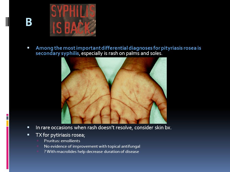 B Among the most important differential diagnoses for pityriasis rosea is secondary syphilis, especially is rash on palms and soles.