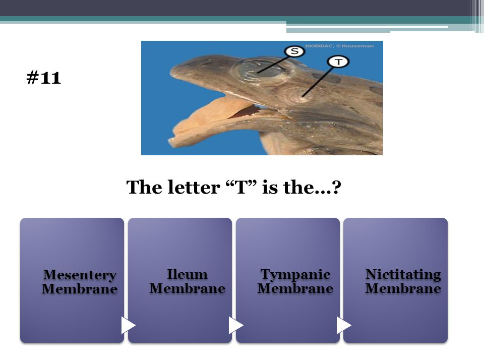 #11 The letter T is the… Mesentery Membrane Ileum Membrane