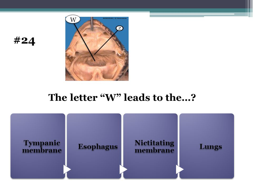 The letter W leads to the…