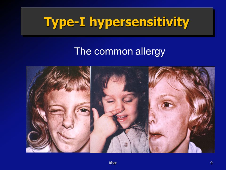 Type-I hypersensitivity
