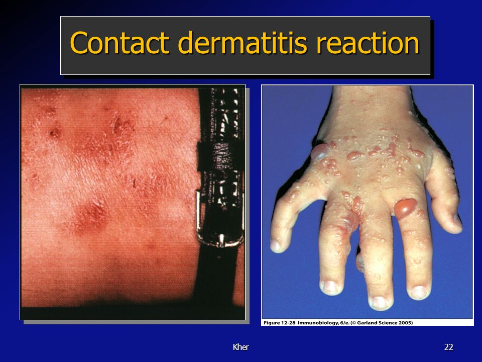 Contact dermatitis reaction