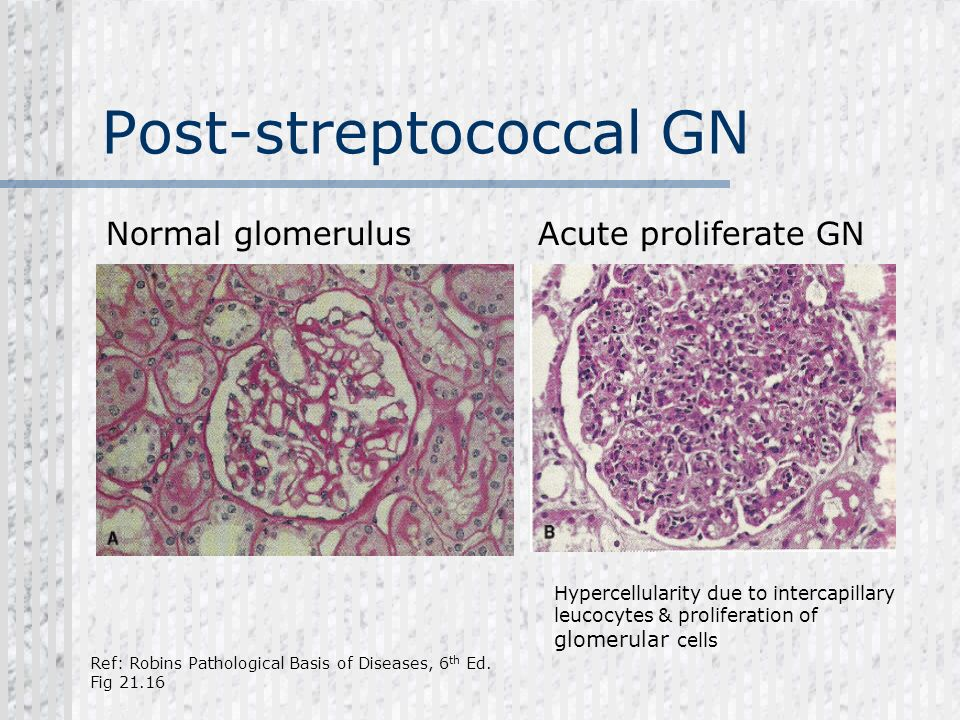 Post-streptococcal GN