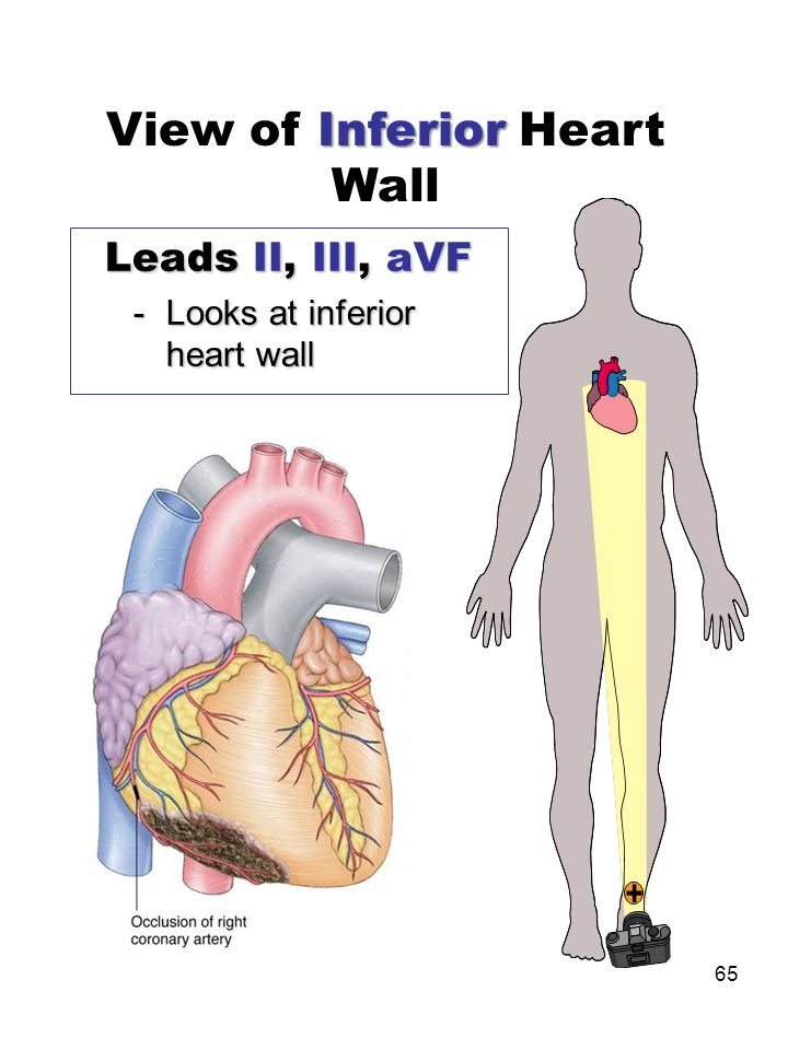 View of Inferior Heart Wall