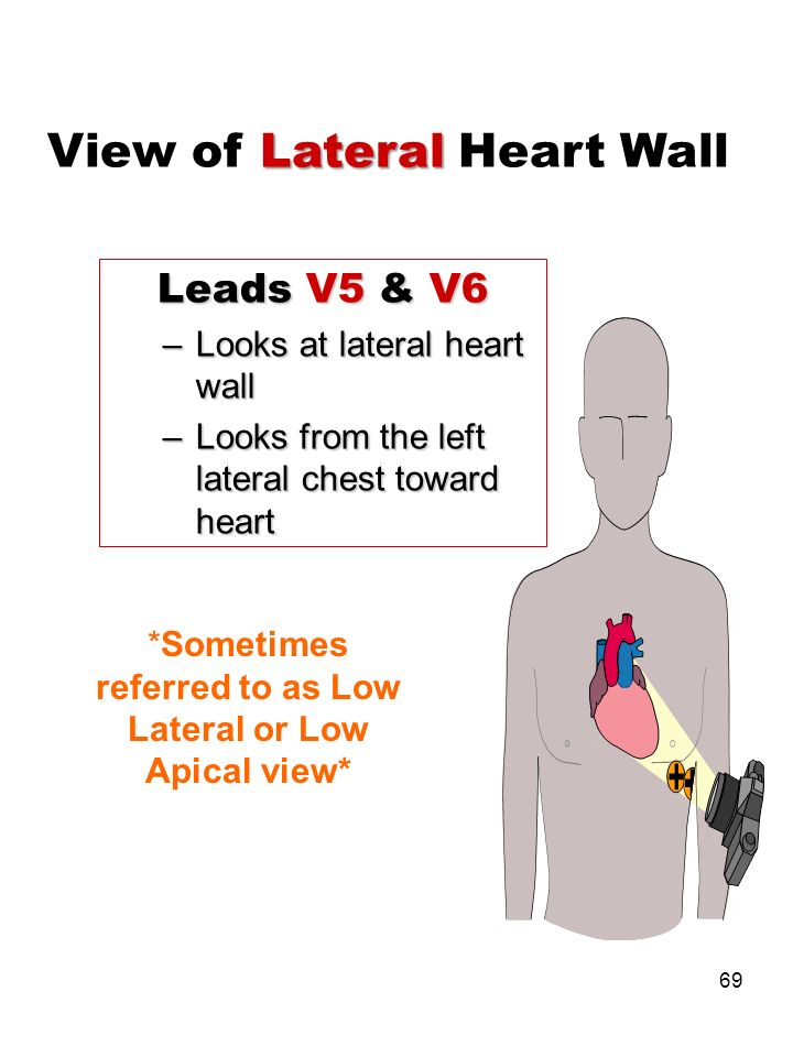 View of Lateral Heart Wall
