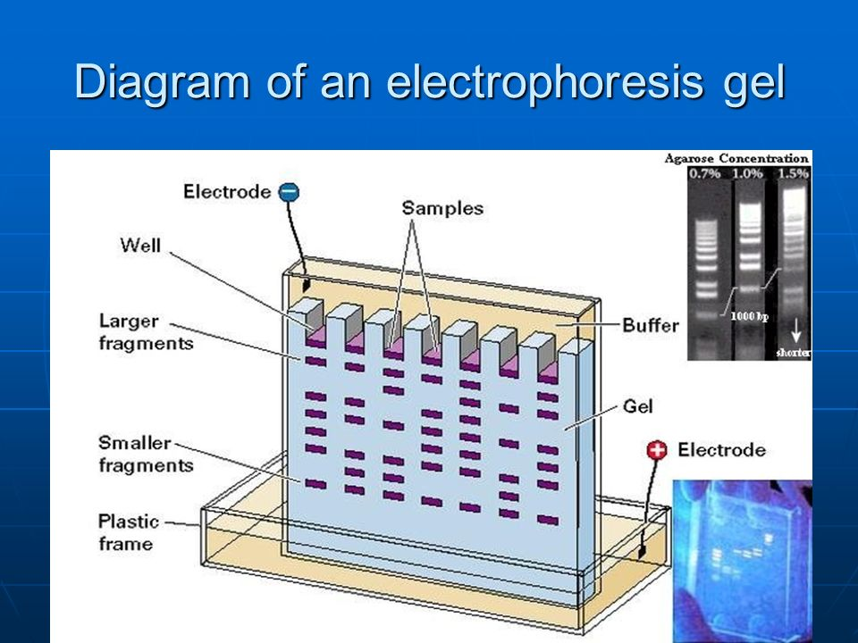 Diagram of an electrophoresis gel