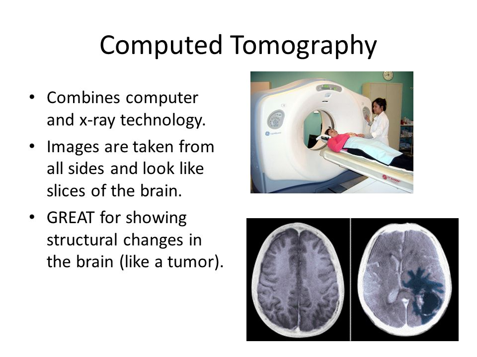 Computed Tomography Combines computer and x-ray technology.