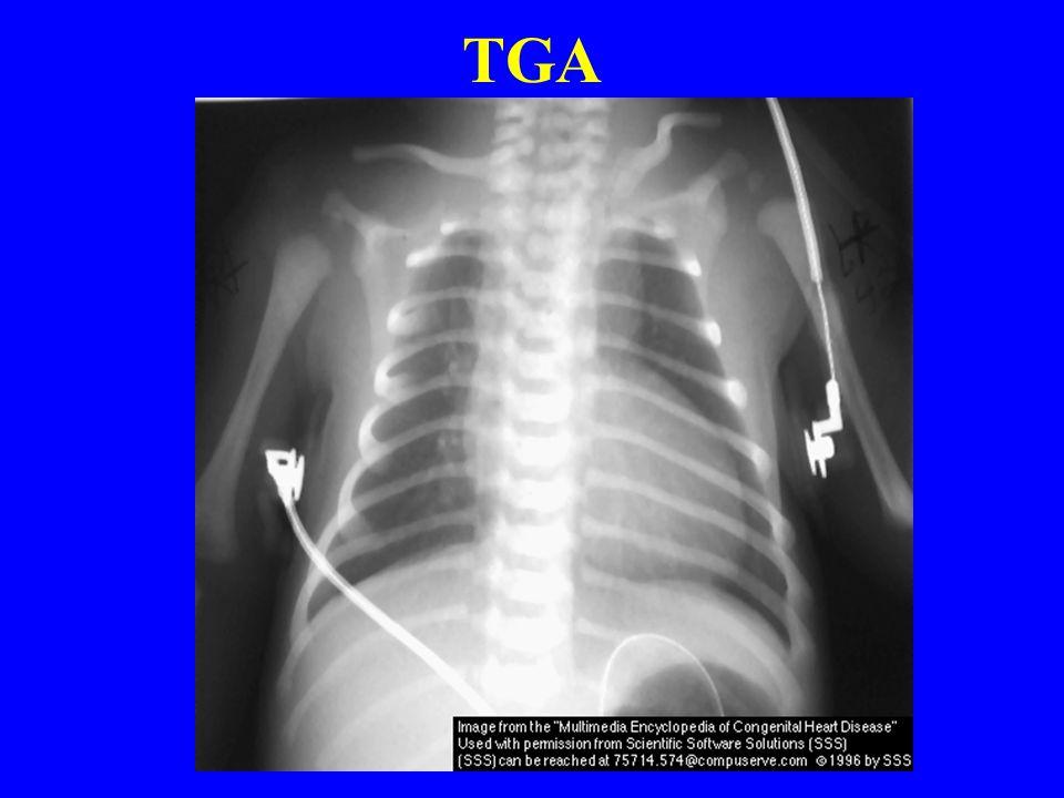 Congenital Heart Disease Ppt Video Online Download