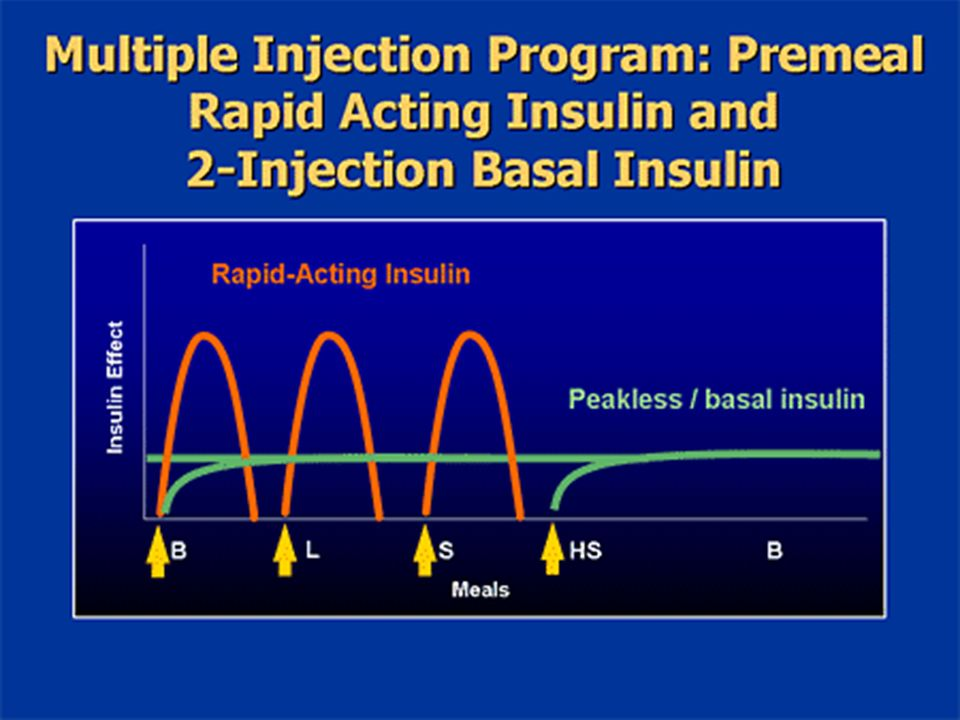 Using a twice-daily injection of basal insulin combined with a rapid-acting insulin prior to each meal offers a nice, predictable pattern that offers more precise coverage than some of the less physiologic programs.