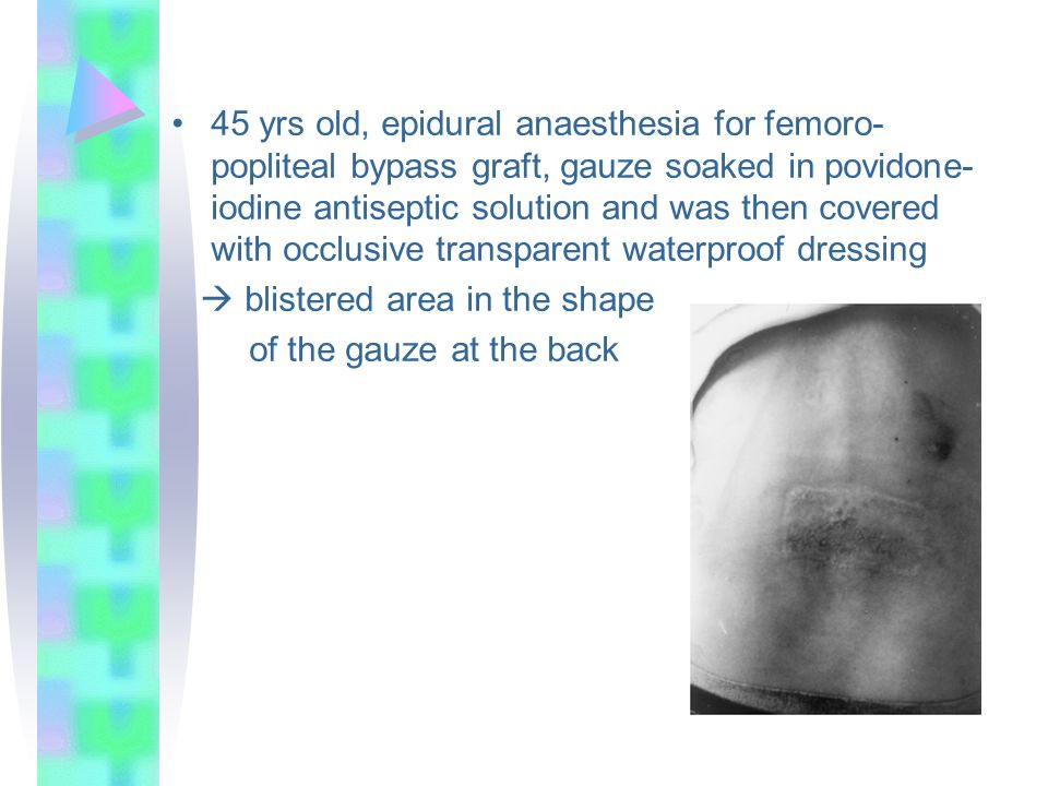 45 yrs old, epidural anaesthesia for femoro-popliteal bypass graft, gauze soaked in povidone-iodine antiseptic solution and was then covered with occlusive transparent waterproof dressing
