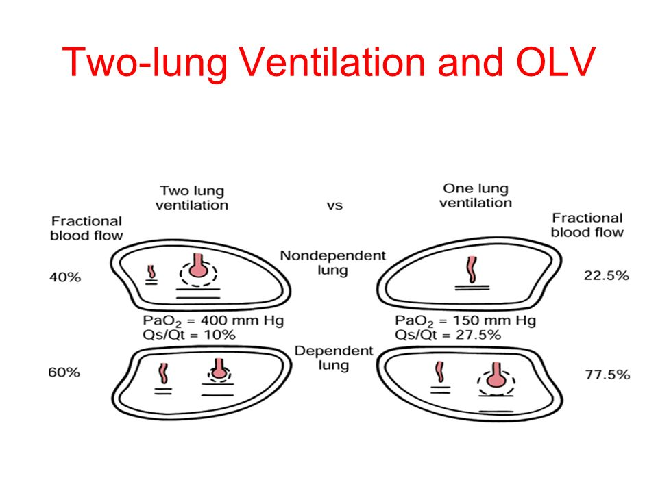 Two-lung Ventilation and OLV