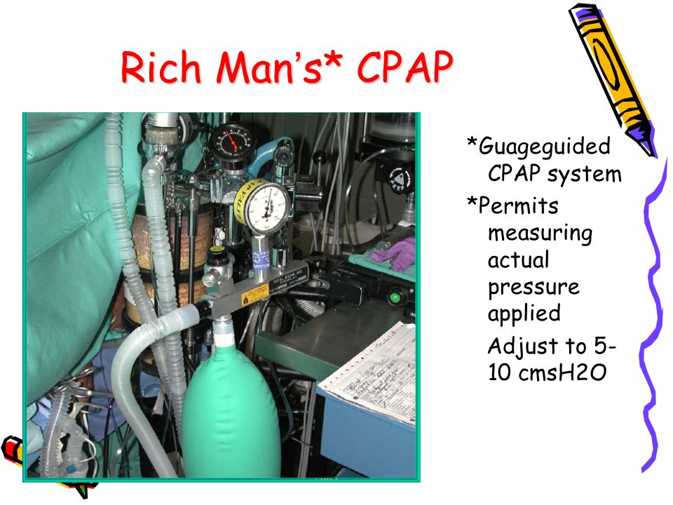 Rich Man's* CPAP *Guageguided CPAP system *Permits measuring actual pressure applied Adjust to 5-10 cmsH2O