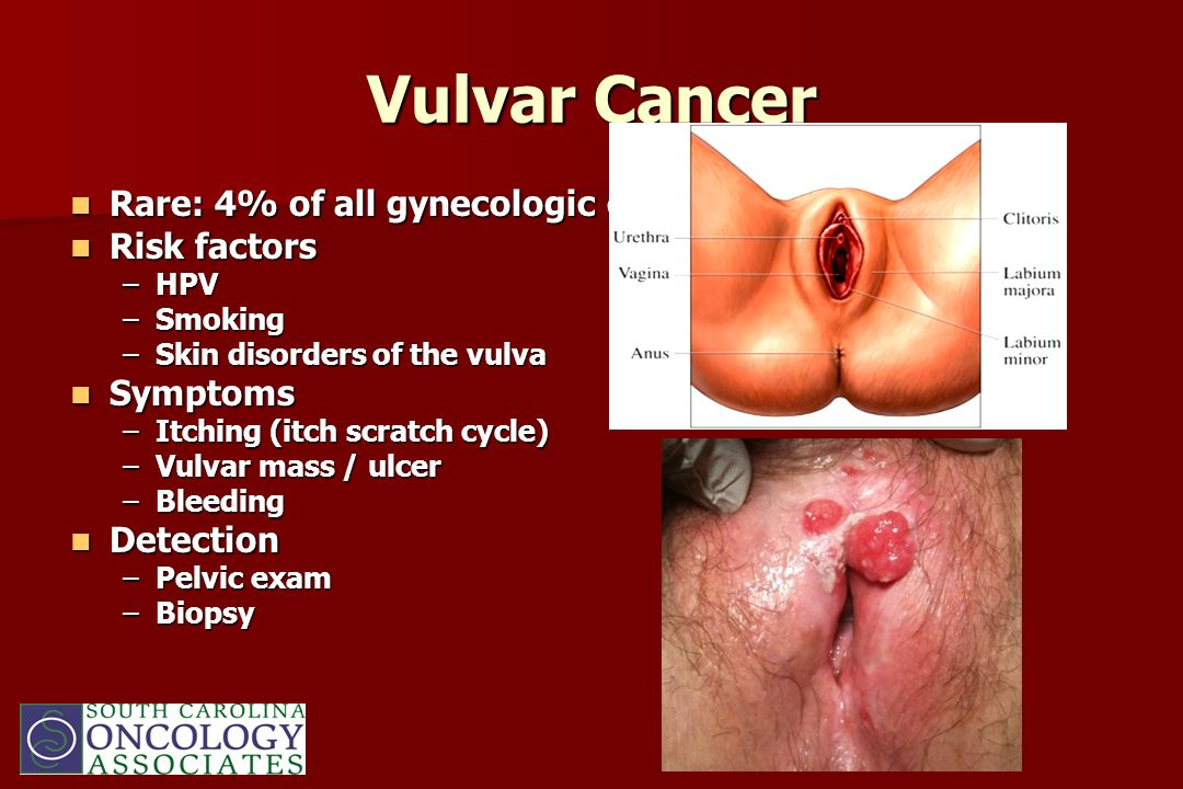 Vulvar Cancer Rare: 4% of all gynecologic cancers Risk factors