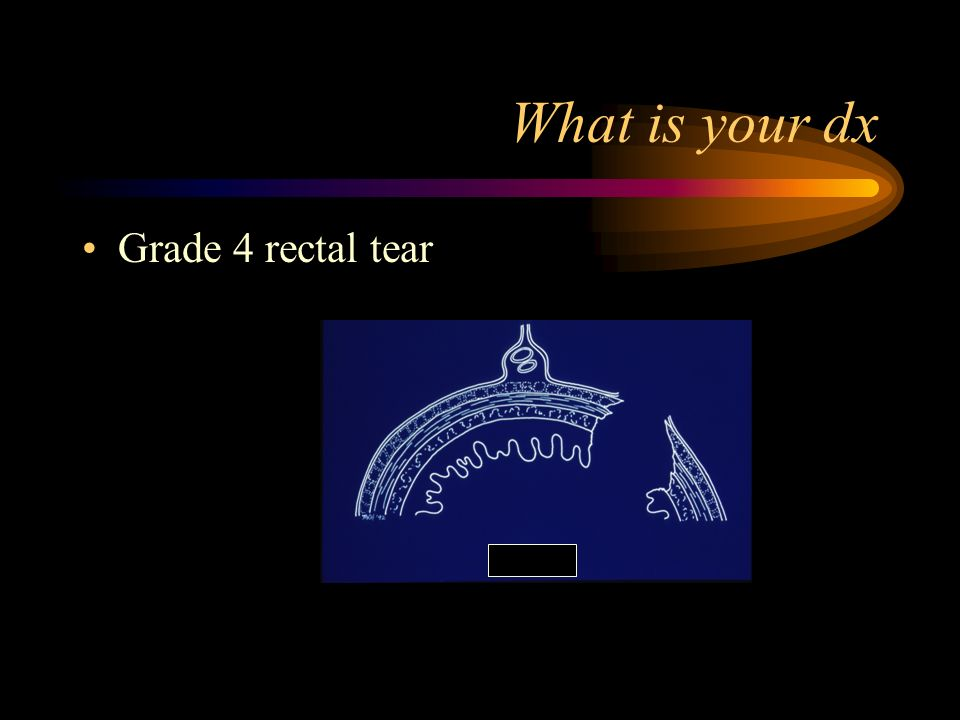 What is your dx Grade 4 rectal tear