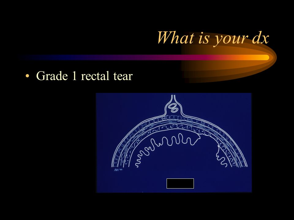 What is your dx Grade 1 rectal tear