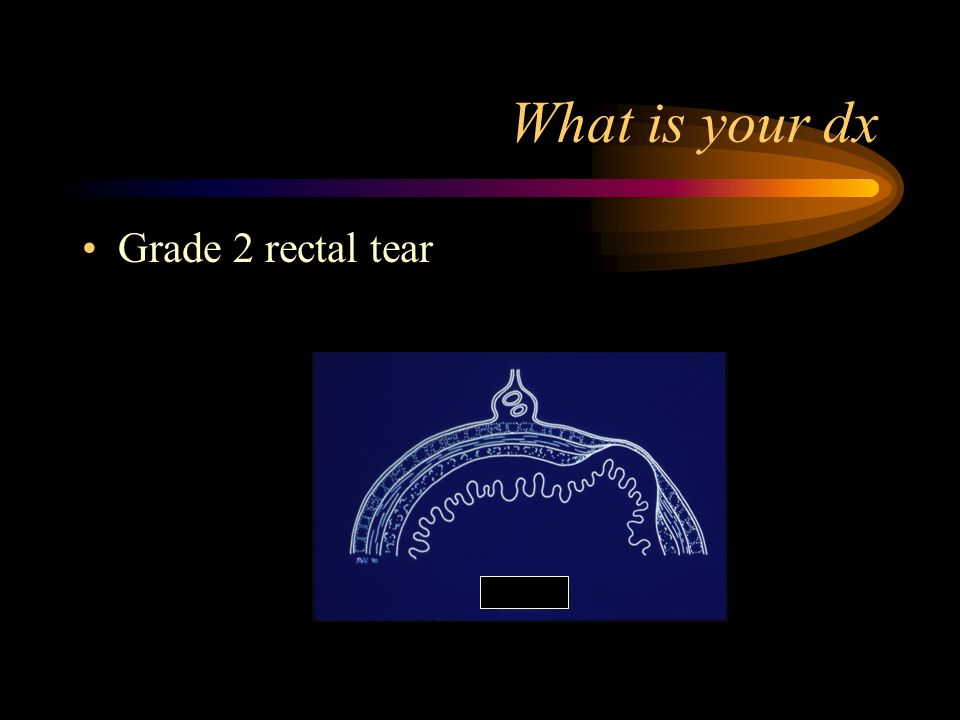 What is your dx Grade 2 rectal tear