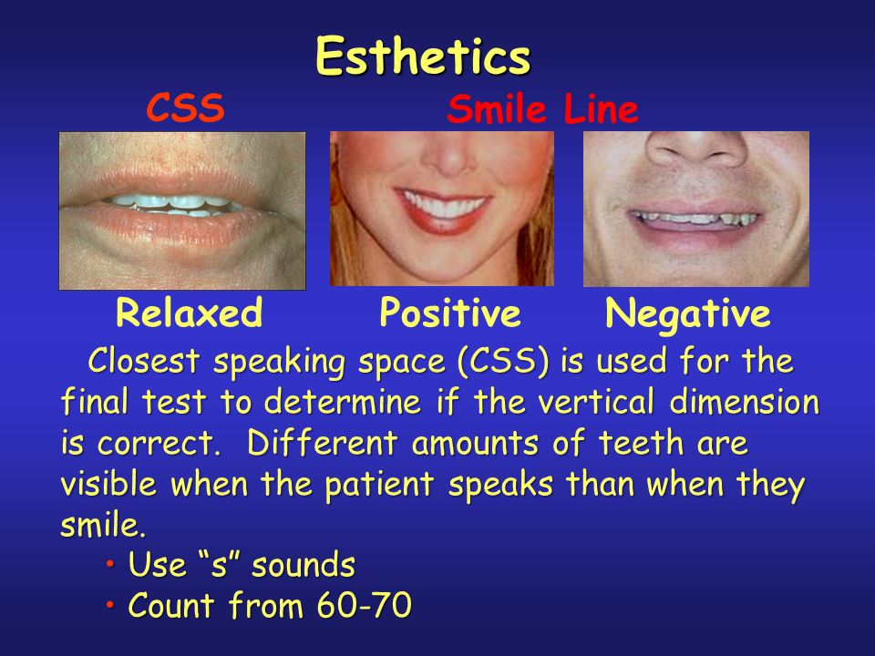 Esthetics CSS Smile Line Relaxed Positive Negative
