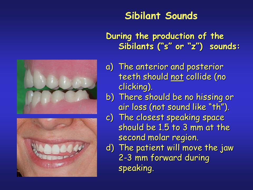 Sibilant Sounds During the production of the Sibilants ( s or z ) sounds: a) The anterior and posterior teeth should not collide (no clicking).