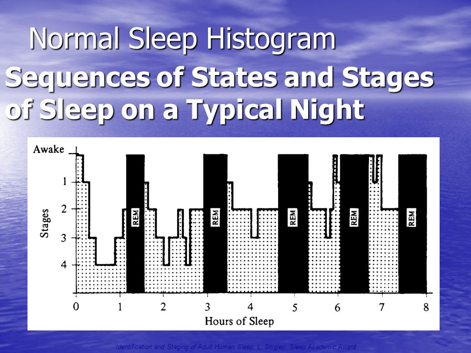 Normal Sleep Histogram