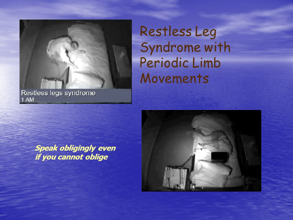 Restless Leg Syndrome with Periodic Limb Movements