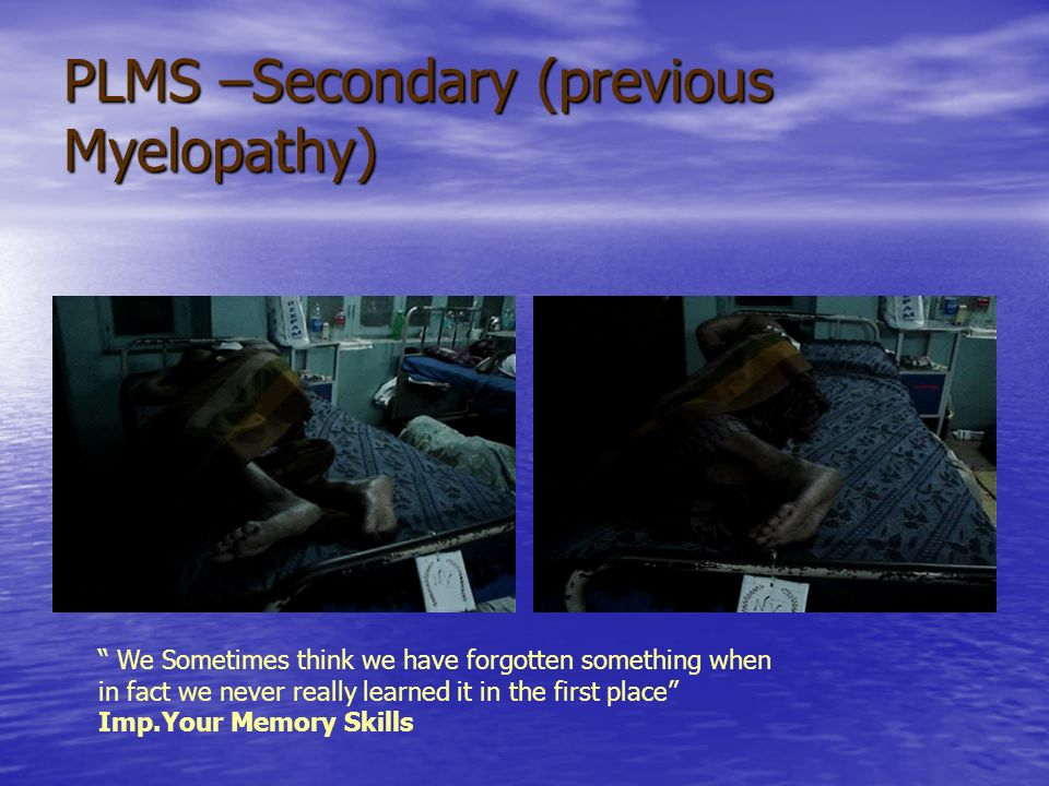 PLMS –Secondary (previous Myelopathy)