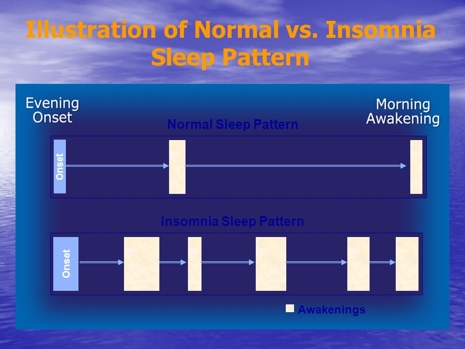 Illustration of Normal vs. Insomnia Sleep Pattern