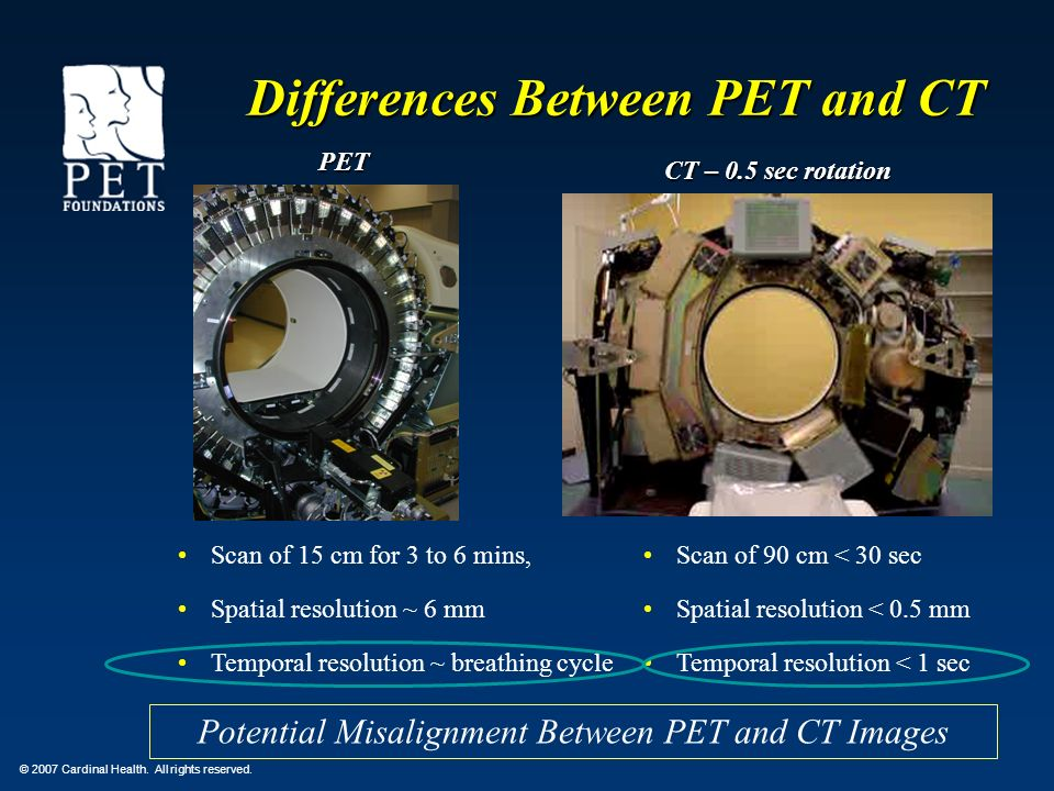 Differences Between PET and CT