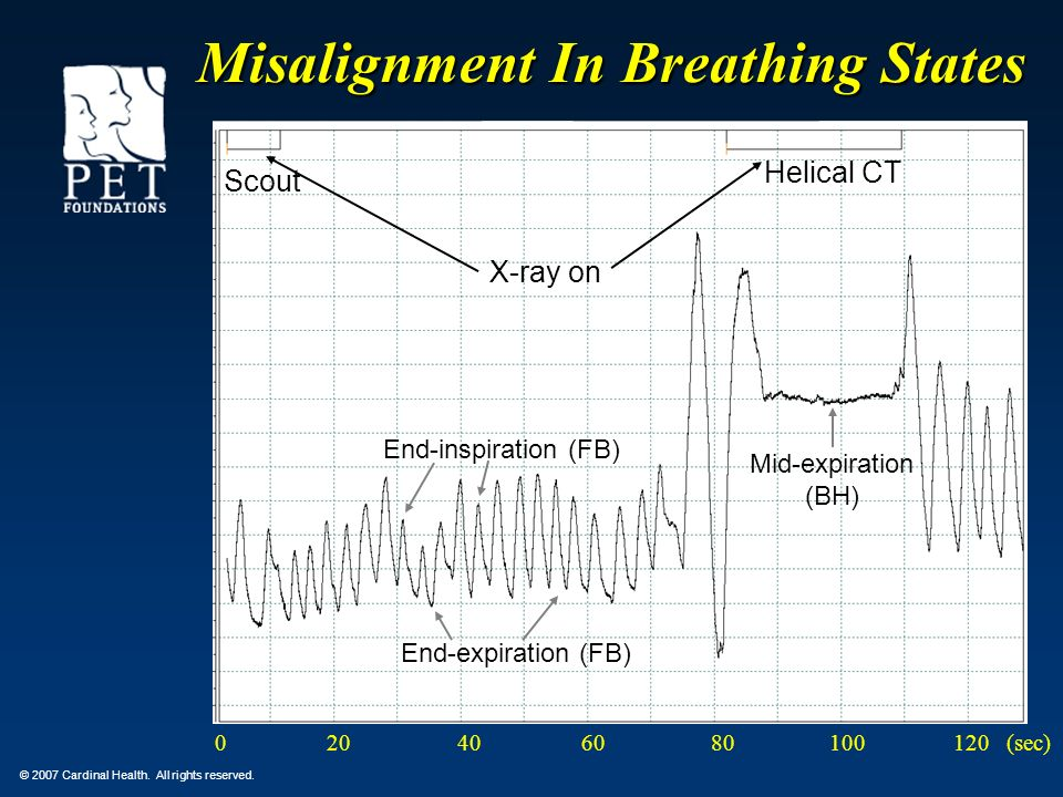 Misalignment In Breathing States