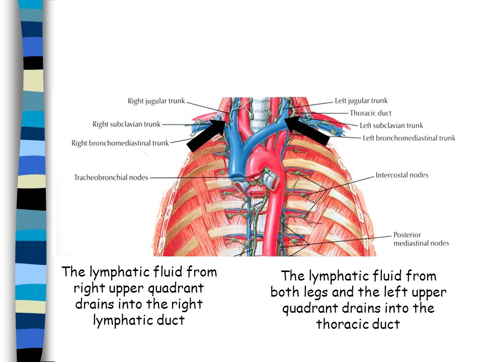 The lymphatic fluid from right upper quadrant drains into the right lymphatic duct