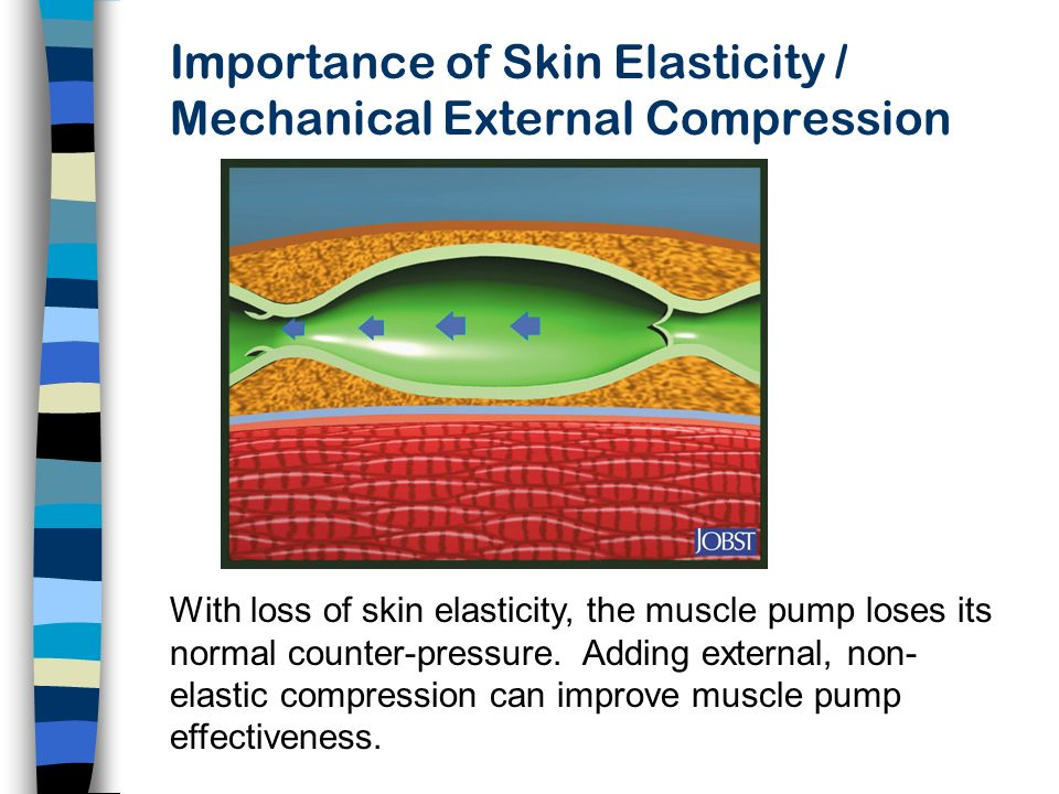 Importance of Skin Elasticity / Mechanical External Compression