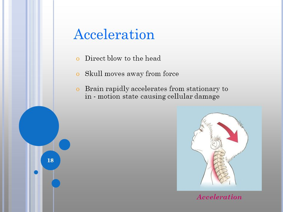 Acceleration Direct blow to the head Skull moves away from force