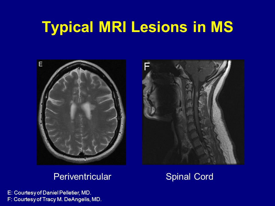 Typical MRI Lesions in MS