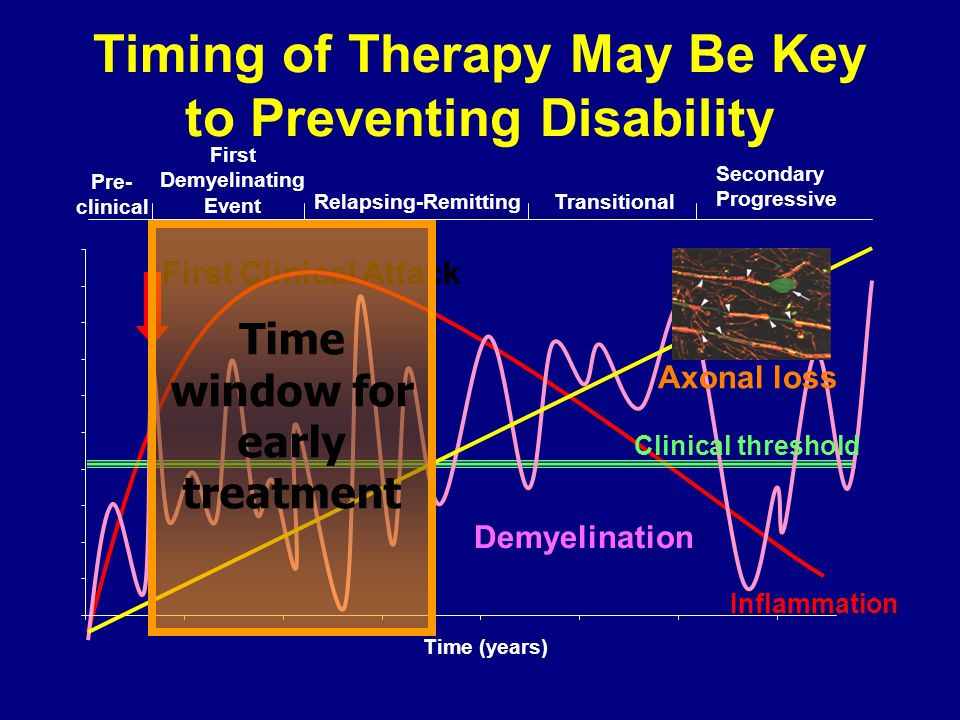 Timing of Therapy May Be Key to Preventing Disability