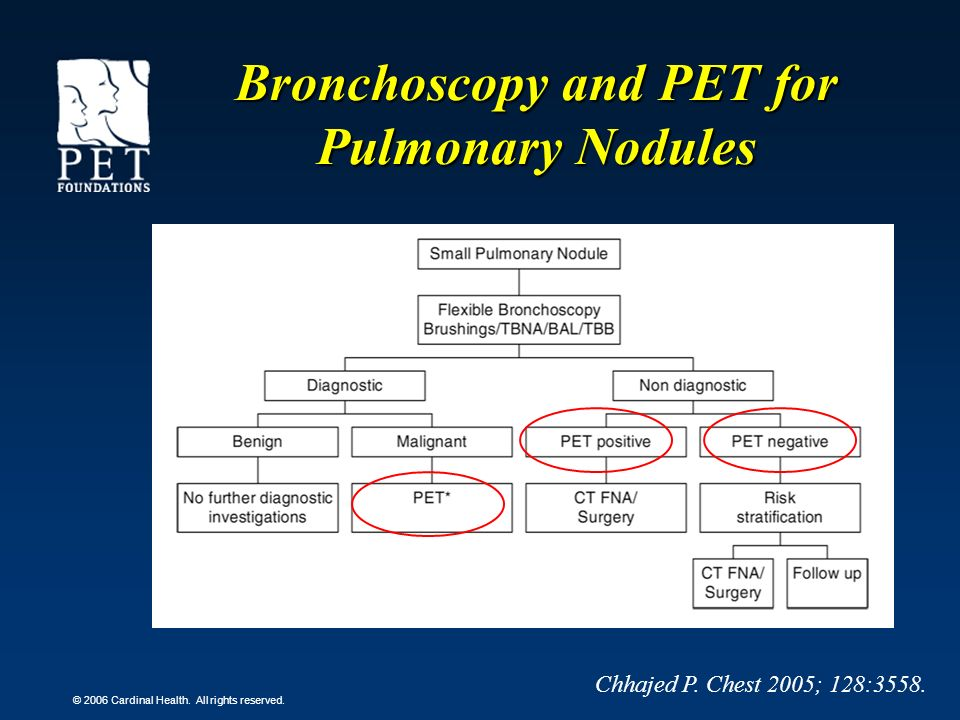 Bronchoscopy and PET for Pulmonary Nodules
