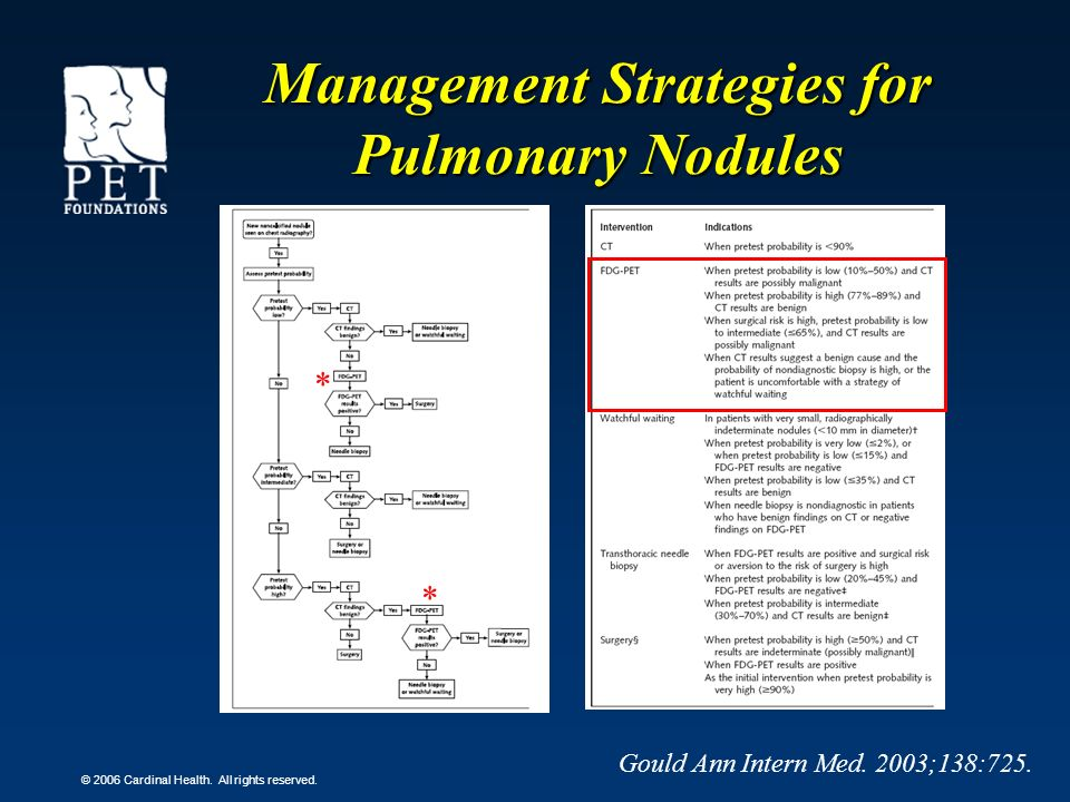Management Strategies for Pulmonary Nodules