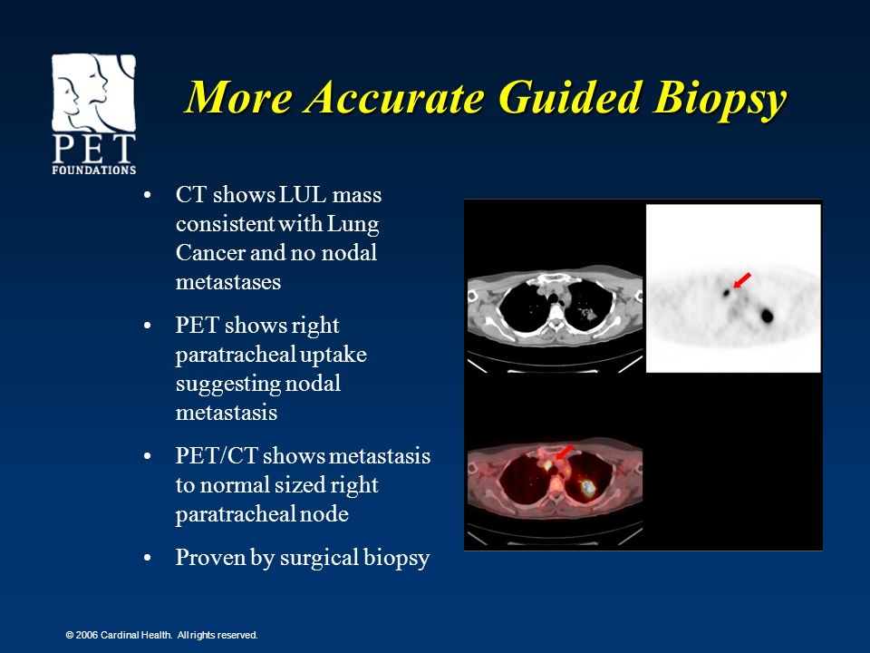 More Accurate Guided Biopsy
