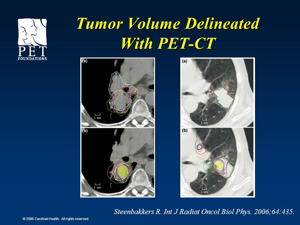 Tumor Volume Delineated With PET-CT