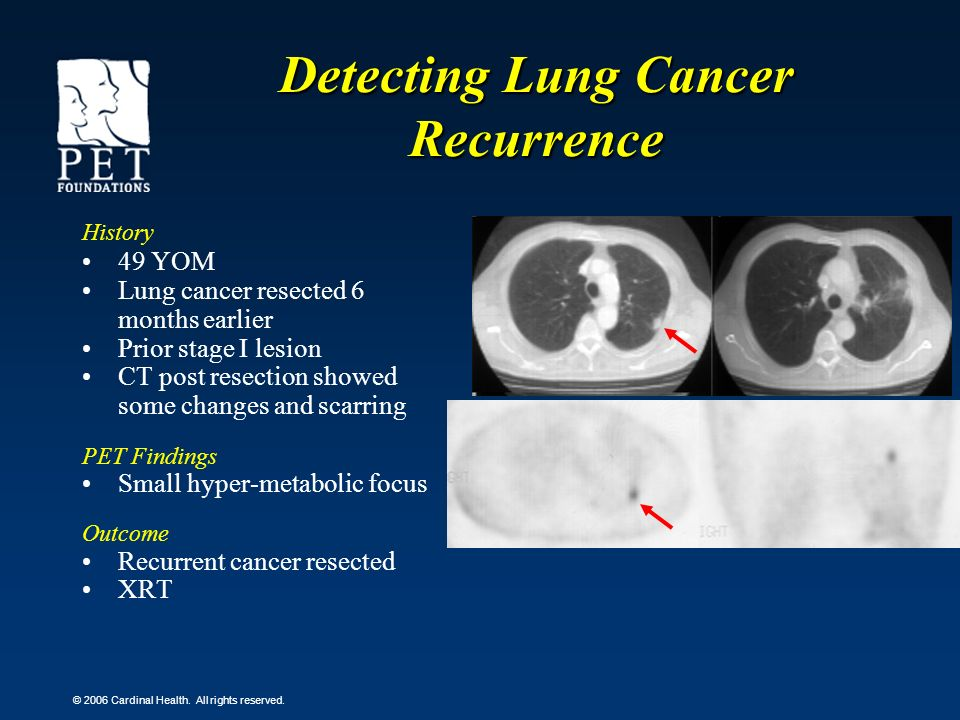Detecting Lung Cancer Recurrence