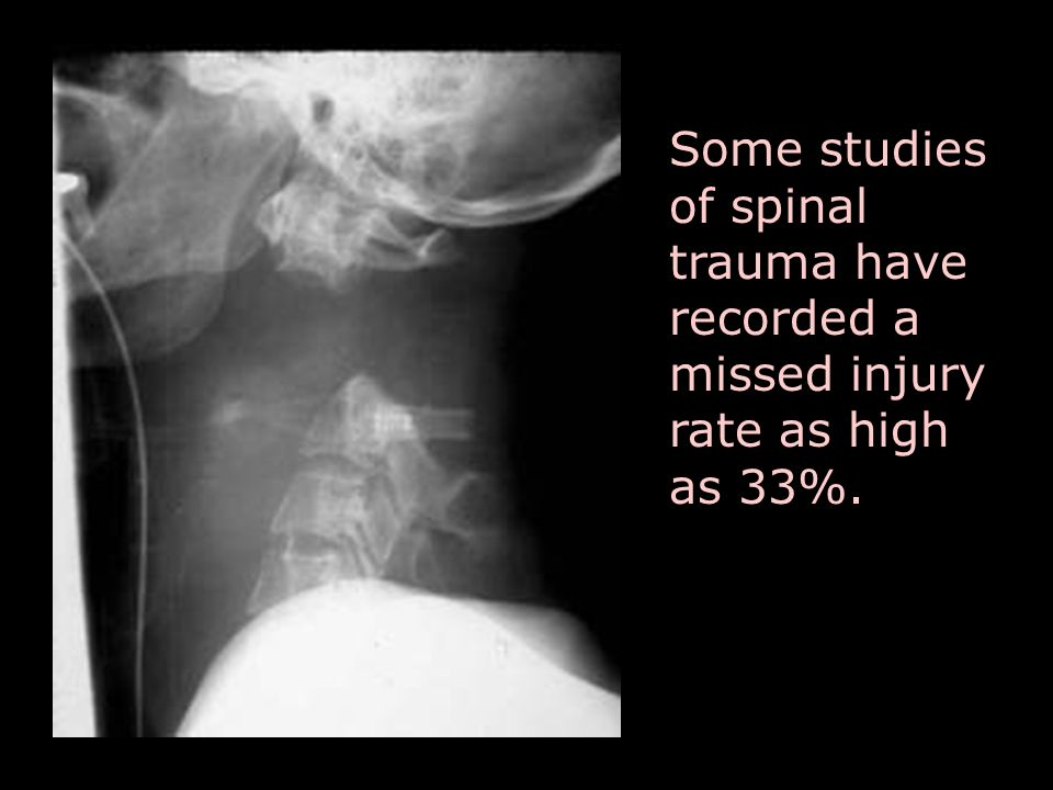 Some studies of spinal trauma have recorded a missed injury rate as high as 33%.