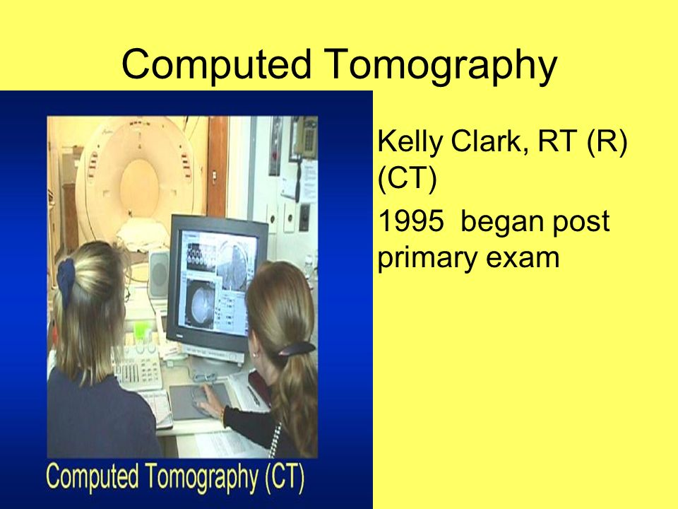 Computed Tomography Kelly Clark, RT (R) (CT)