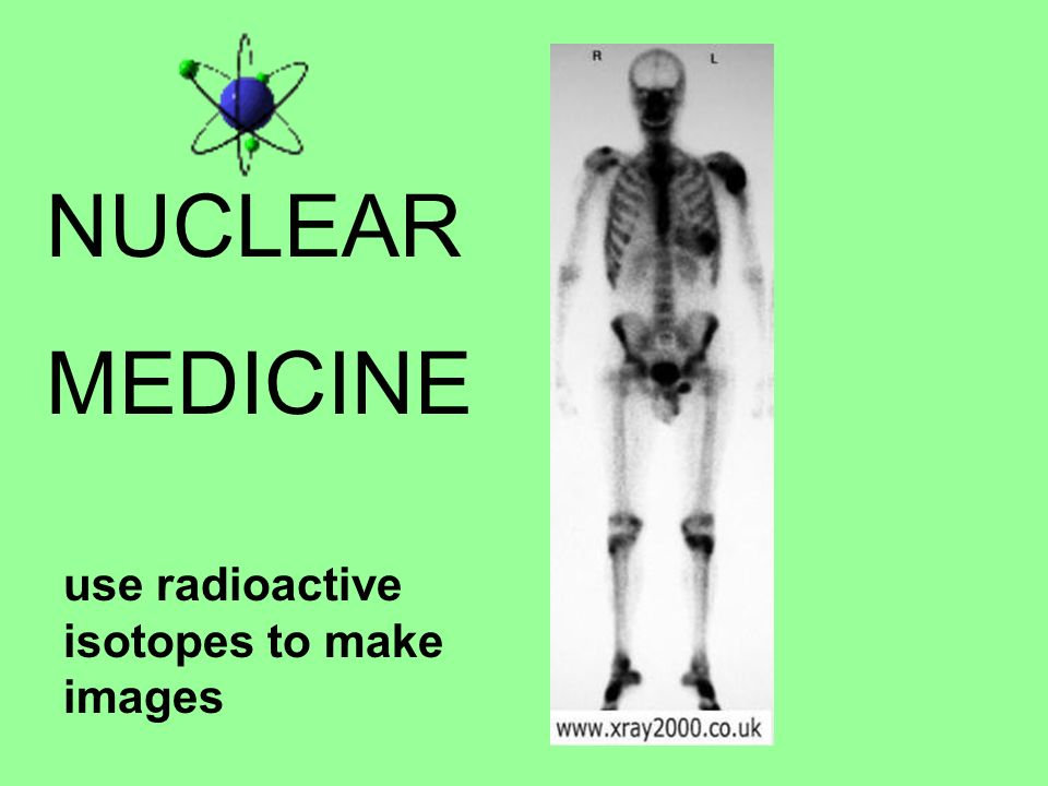 NUCLEAR MEDICINE use radioactive isotopes to make images
