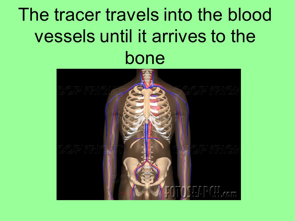 The tracer travels into the blood vessels until it arrives to the bone