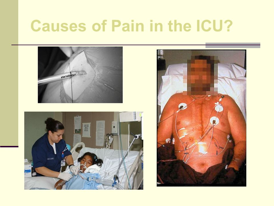 Causes of Pain in the ICU