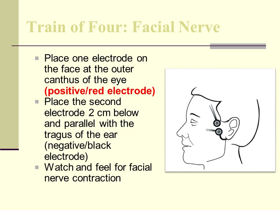 Train of Four: Facial Nerve