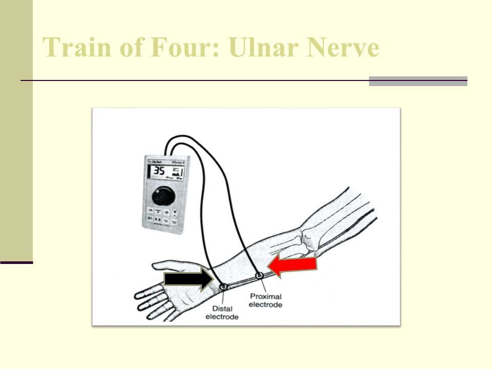 Train of Four: Ulnar Nerve