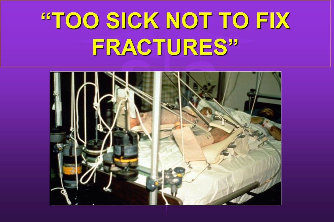 TOO SICK NOT TO FIX FRACTURES