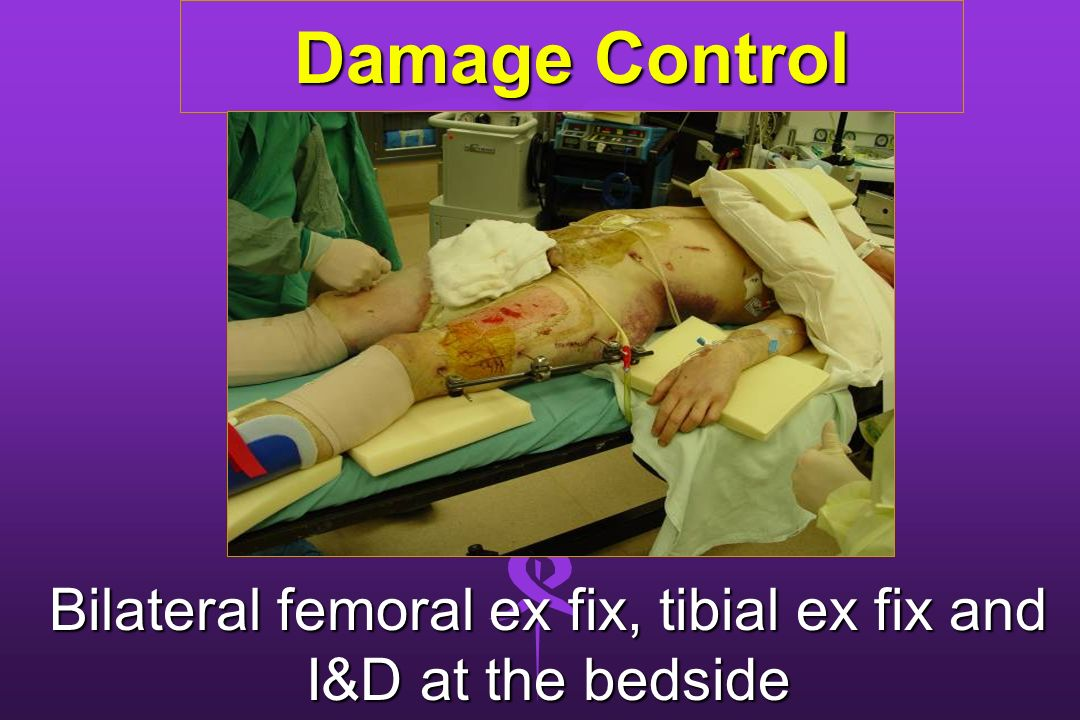 Bilateral femoral ex fix, tibial ex fix and I&D at the bedside
