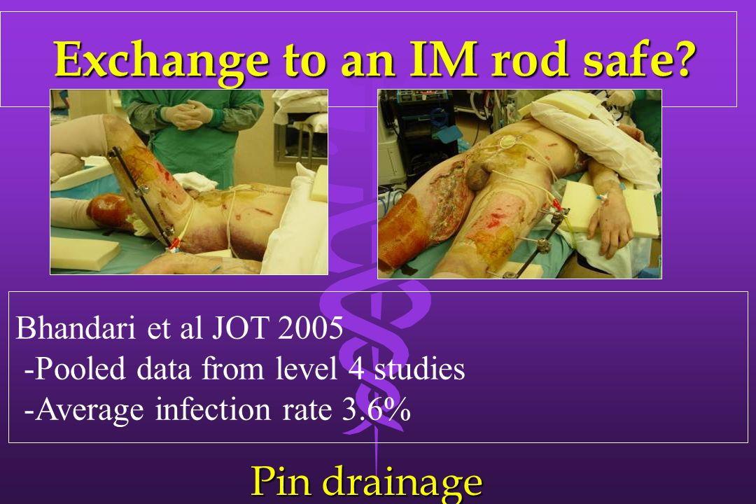 Exchange to an IM rod safe