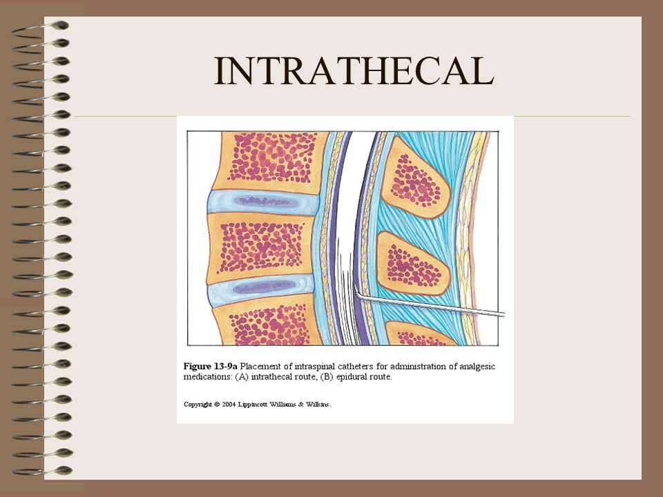 INTRATHECAL